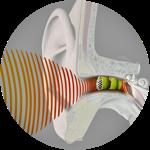 hearing-rfp-16